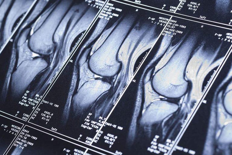 мрт коленного сустава в улан-удэ